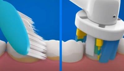 cepillo electrico o manual para los dientes