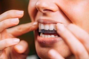 como funciona blanqueamiento dental