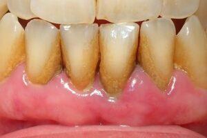 Cepillo de dientes eléctrico que elimina el sarro