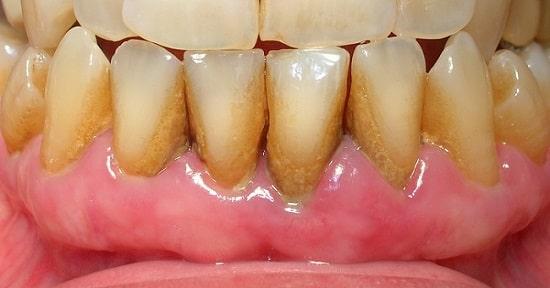 quitar el sarro dental